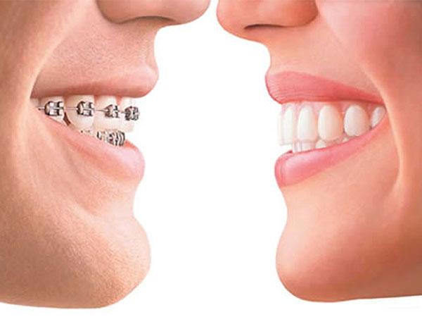 Brackets Metálicos Ortodoncia