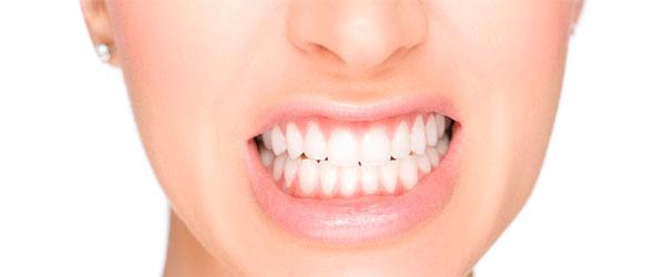 Bruxismo Implantes Dentales