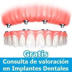 Consulta Gratuita en Implantes Dentales