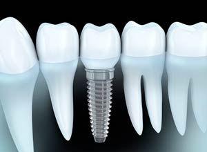 ¿Cuanto tiempo duran los Implantes Dentales?