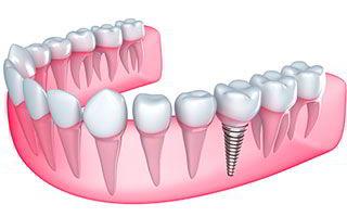 Implantes Dentales Dr. Ricardo Molina Moguel