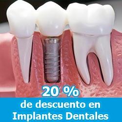 Implantes Dentales - Promociones