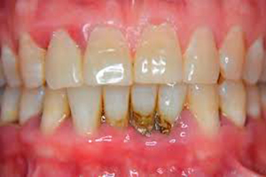 Limpieza-Dental-Profunda3