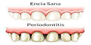 Periodontitis2