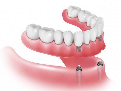 Prótesis Dental Soportada con Implantes Dentales