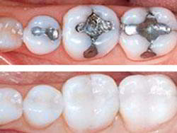 Implantes Dentales Resinas