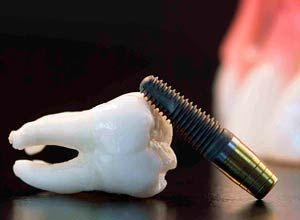 Riesgos por Implantes Dentales de Baja Calidad