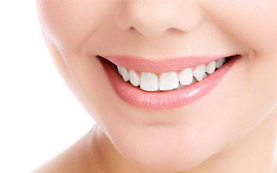 Sonrisa Perfecta Implantes Dentales