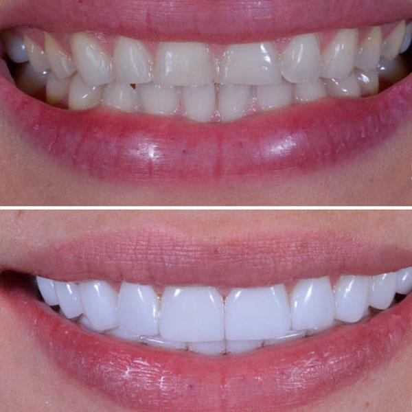Carillas Dentales - Antes y Después