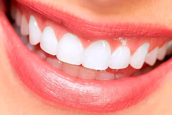 Carillas Dentales Ventajas