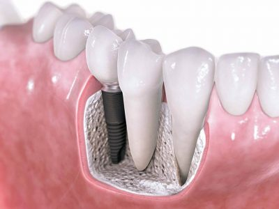 Dibujo de un Implante Dental
