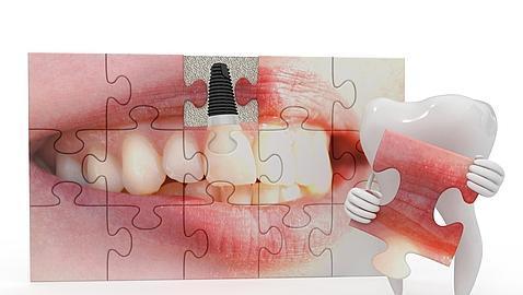 Union de implantes dentales