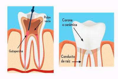 endodoncia5
