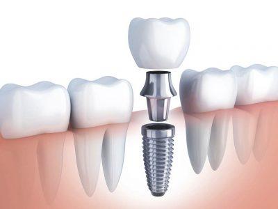 Implante Dental Unitario