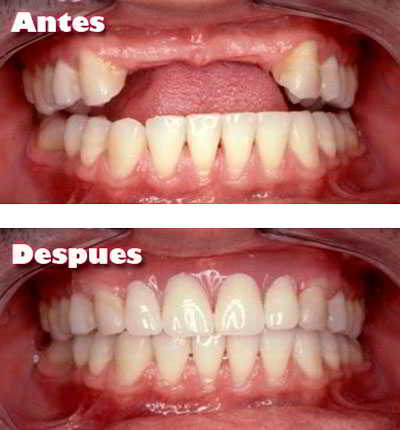 Implantes Dentales Ejemplo