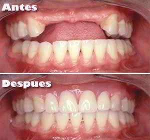 Implantes Dentales Antes - Después