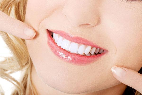 Limpieza Dental Beneficios