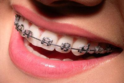 ortodoncia-frenos-dentales