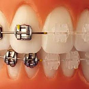 ortodoncia3