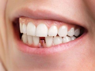 Persona con Implante Dental