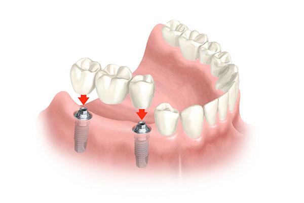 Prótesis Dental en Puente